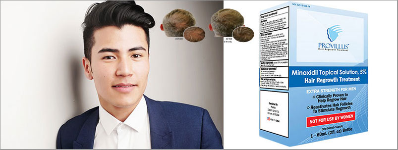 Provillus Hair Regrowth Treatment Reviews Benefits Results